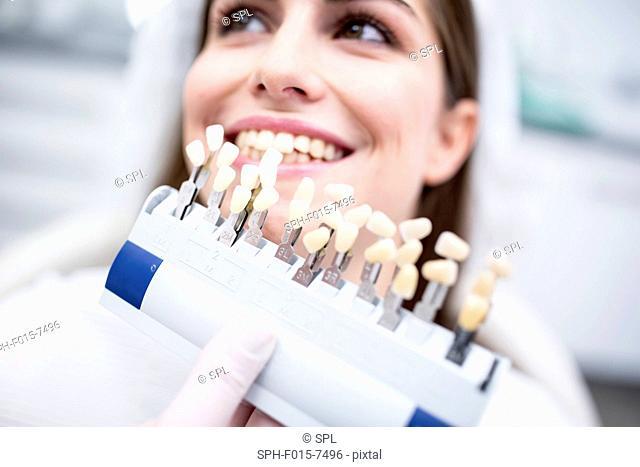 MODEL RELEASED. Patient selecting tooth veneers