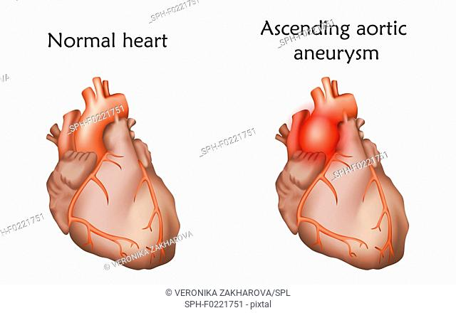 Ascending aortic aneurysm, illustration