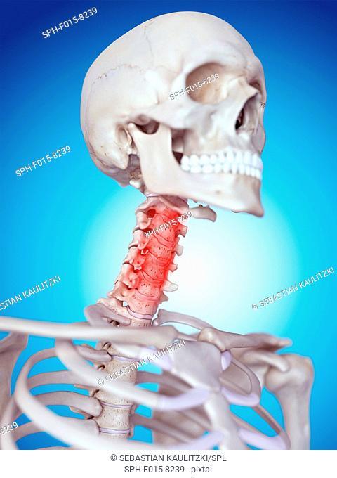 Human skull and neck pain, illustration