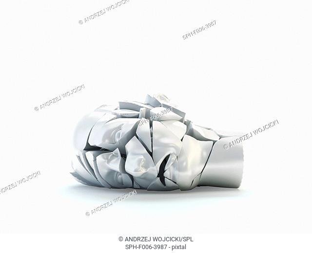 Mental health problems, computer artwork