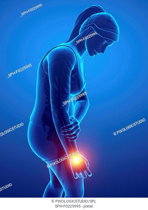 Woman with wrist pain, illustration