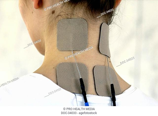 young woman with TENS electrodes