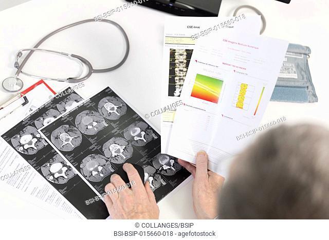 Lumbar scan and bone densitometry
