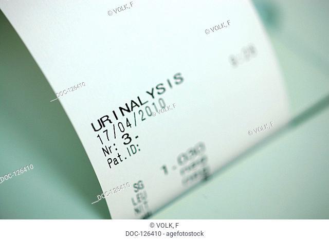 laboratory leves . Urine