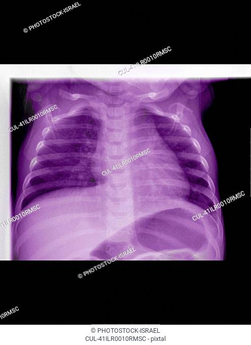 X-ray of viral gastroenteritis
