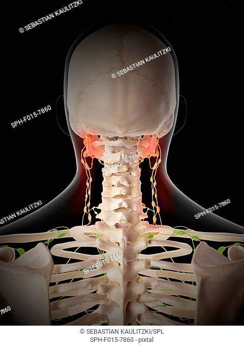 Painful human lymph nodes, illustration