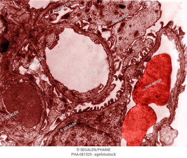 Transmission electron micrograph TEM of os a section of a glomerulus. The round shapes at center and right are blood vessels two red blood cells are visible at...