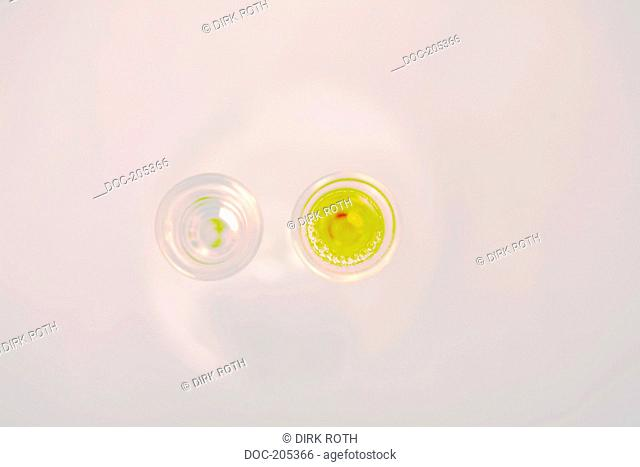 diagnosis of metabolism disorder in the urine with nitric acid in u-shaped glass tube