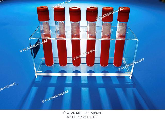 Blood samples in a lab