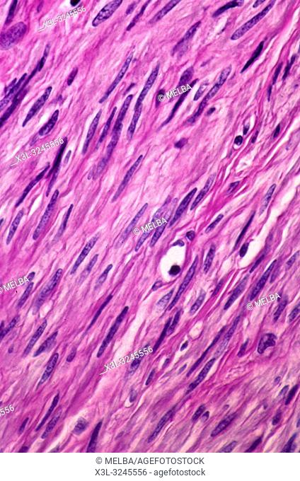 Smooth muscle fibres