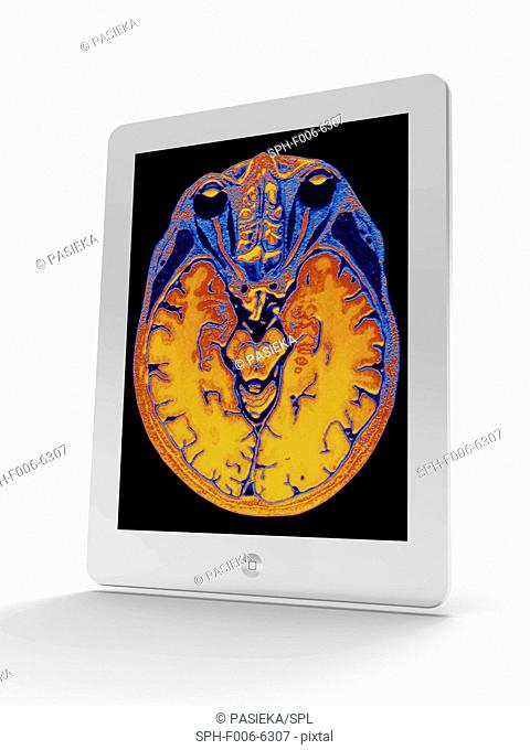Tablet computer showing a false-colour magnetic resonance imaging (MRI) scan of a human head containing a healthy brain, seen in horizontal view