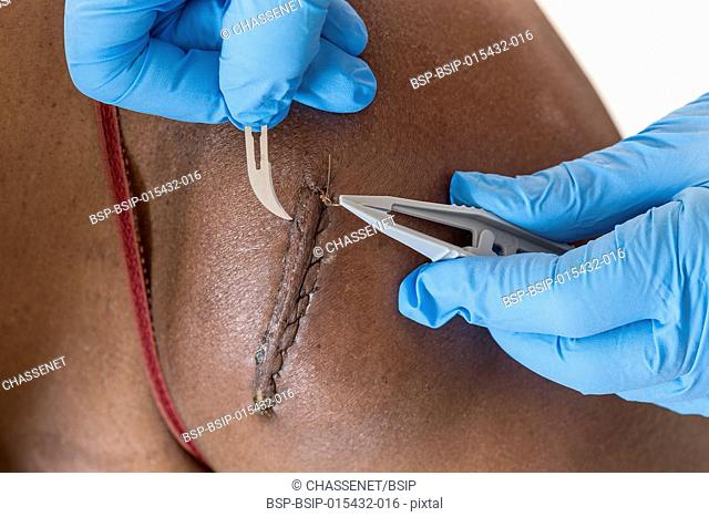 Removing medical thread from wound with stitches on woam blaclk skin shoulder with medical equipment