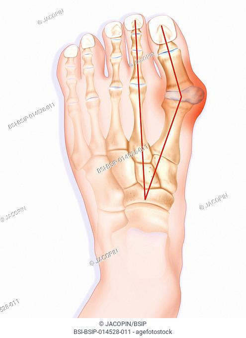 Illustration of hallux valgus. Also known as ôbunionö, hallux valgus is an abnormal deviation of the big toe, which leads to a deformation at the front of the...