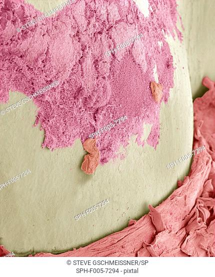 Dental plaque. Coloured scanning electron micrograph SEM of dental plaque pink on a tooth. Plaque consists of a film of bacteria embedded in a glycoprotein...