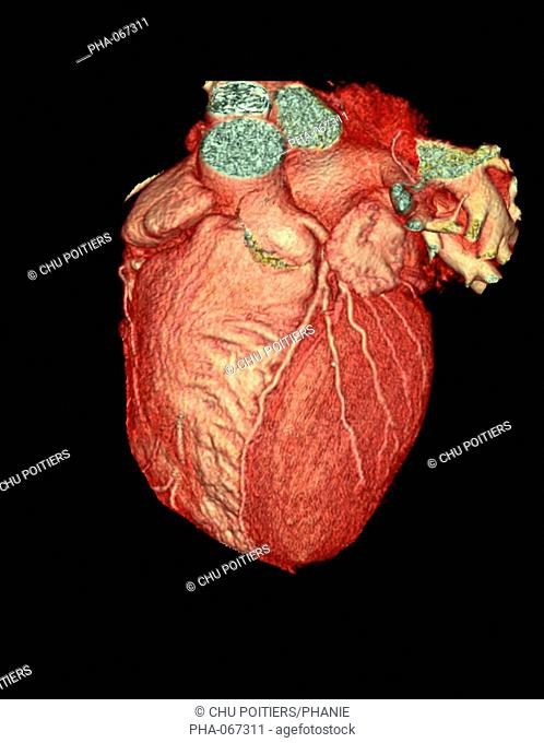 3D Computed Tomography CT reconstruction scan of a normal heart. The left coronary artery at center separated the right ventricle at left and the left ventricle...