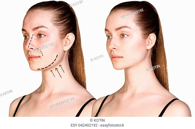 Beautiful young woman with arrows on face. Cosmitic procedures concept