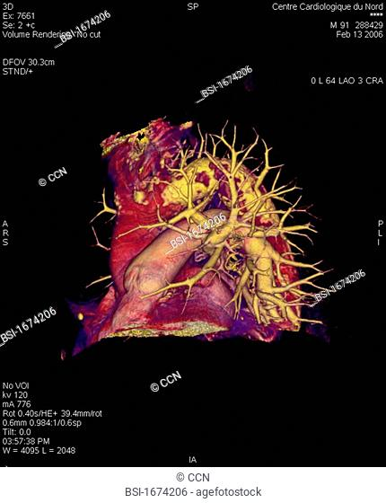 Angiography scanner 3D. Atherosclerosis of the aortic arch visible calcificated plaques, sagittal view. Visualization of the aortic arch and pulmonary...