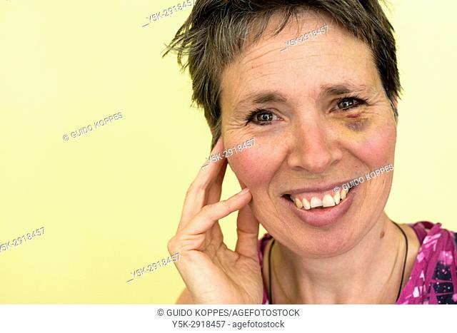 Tilburg, Netherlands. Mature adult woman, portrait, having a black eye after an accident on her bicycle