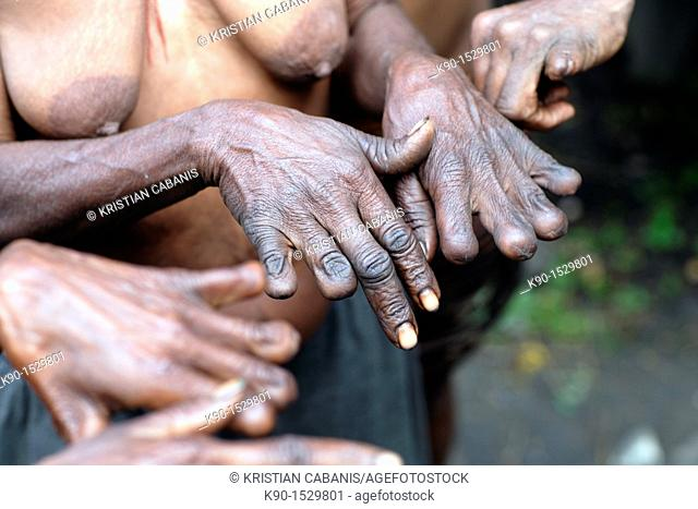 Local Papuan women, showing her fingers cut according to local customs, Baliem Valley festival, Jayawijaya region, Papua, Indonesia, Southeast Asian