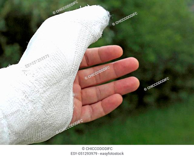wounded hand of the injured person after the fracture of the thumb phalanx