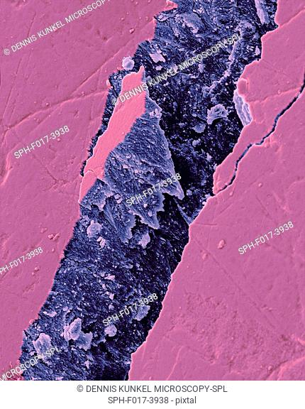 Human tooth fractured enamel, coloured scanning electron micrograph (SEM). Fracture in a tooth revealing the enamel rod morphology
