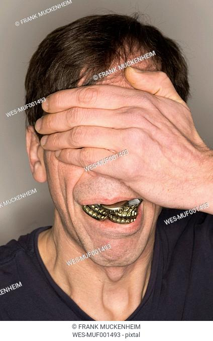 Man with mouth fullof crown caps