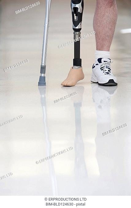 Man wearing prosthetic leg in hospital