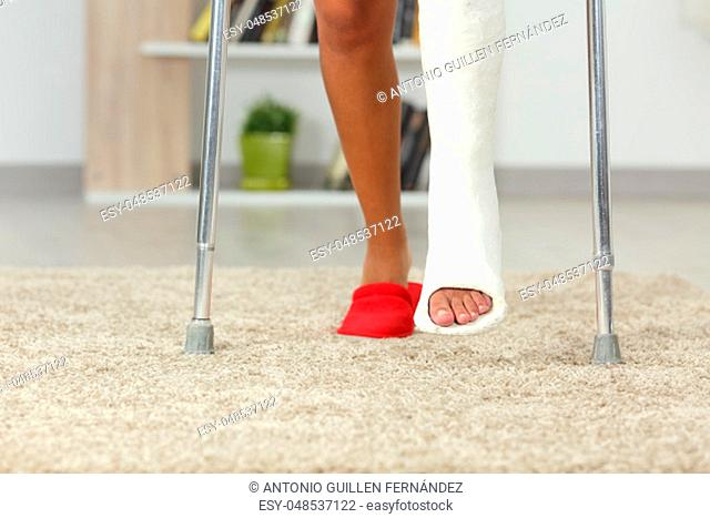 Front view close up of a disabled woman legs with plaster foot walking at home