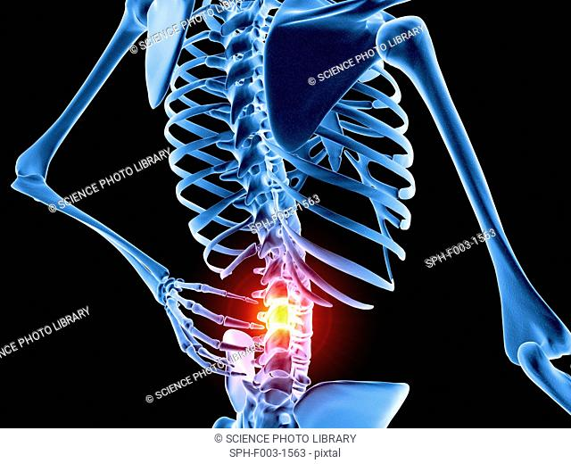 The Bones Of The Lower Back Stock Photos And Images Age Fotostock