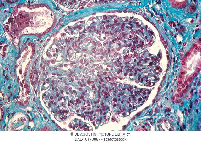 Microphotograph of a section of human renal glomerulus suffering from acute glomerulonephritis