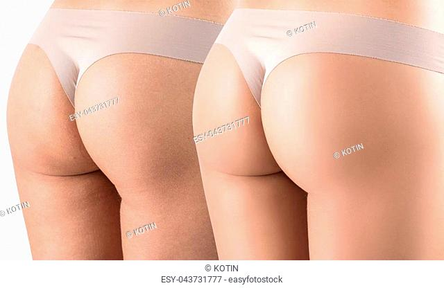 Female buttocks before and after sport and treatment. Isolated on white background