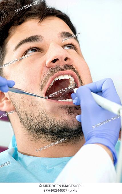 Removing dental tartar