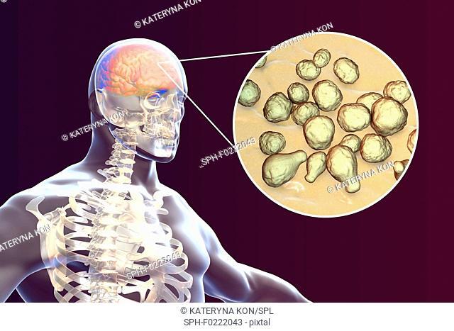 Fungal meningitis, illustration