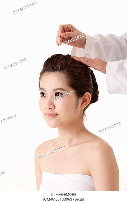 Acupuncture treatment on woman's head