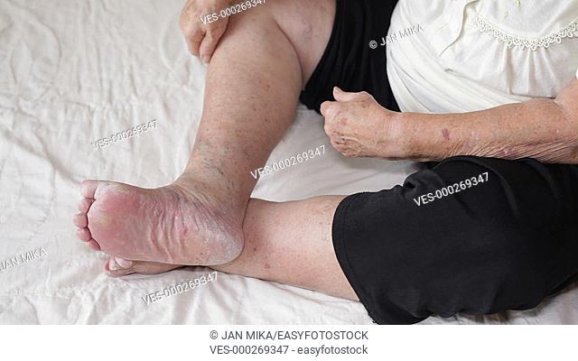Senior woman applying cream on her foot