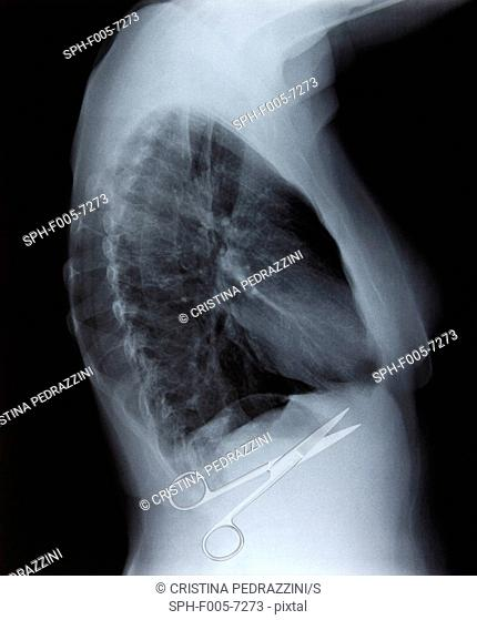 Surgical errors, conceptual image
