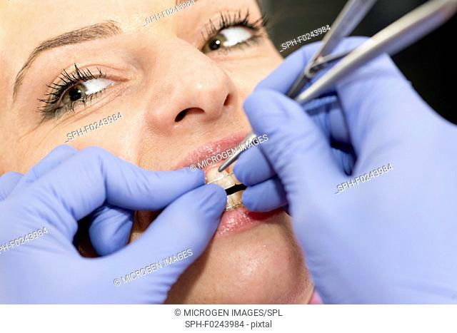Orthodontist tightening braces