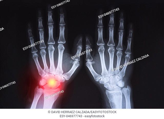 Human's hand's x ray highlighted in red