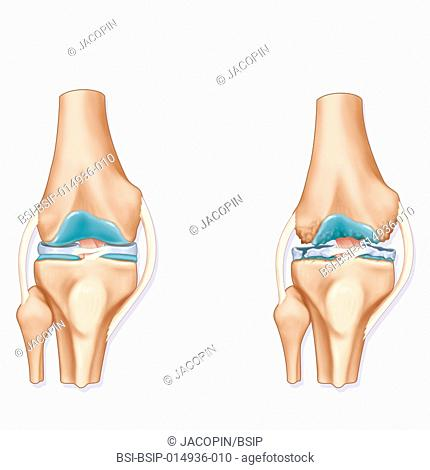 Illustration of the joint in a healthy knee (left) and a knee showing signs of osteoarthritis (right)
