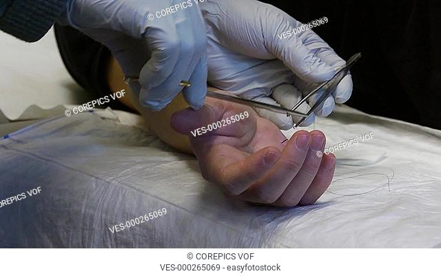 Doctor, stitching a nasty cut on a patient's hand
