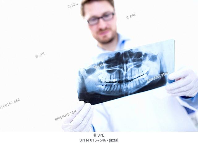 MODEL RELEASED. Dentist looking at x-ray image