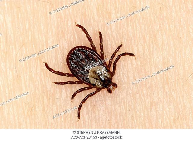 Wood Tick Dermacentor variabilis on person's skin, Ontario, Canada