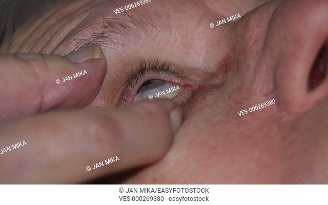 Macro of senior applying eye drops
