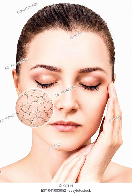 Zoom circle shows facial skin before moistening. Dry skin concept