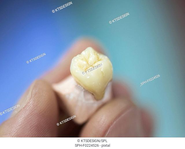 Artificial tooth being made