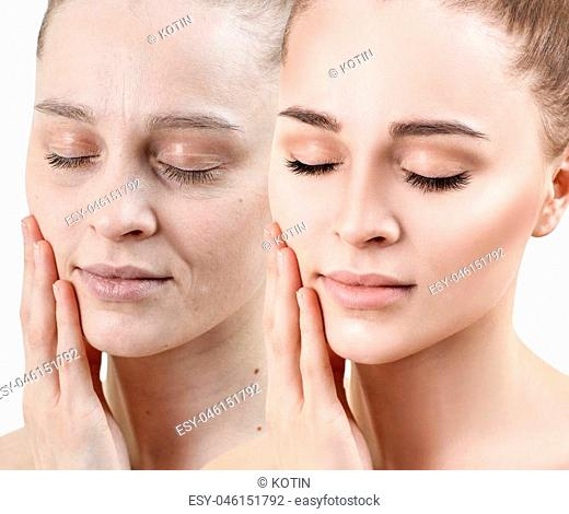 Portrait of woman before and after skin rejuvenation. Recovery concept
