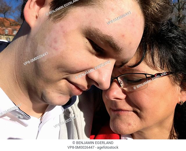 supportive mother and son with vitiligo, skin depigmentation, skin disease, embracing together outdoors in city, Cottbus, Brandenburg, Germany