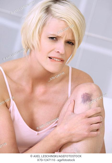 woman with bruise holding her knees