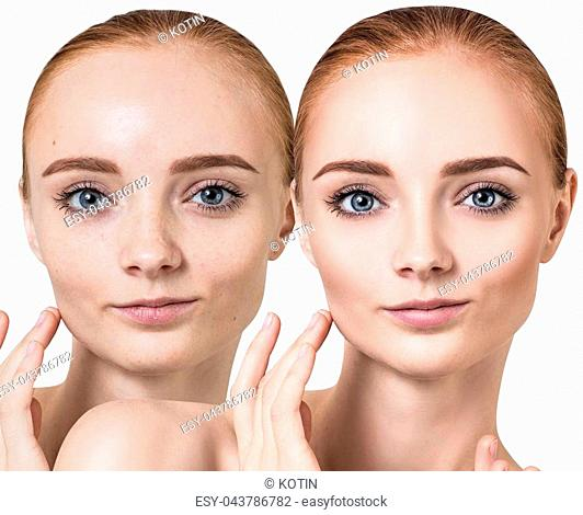 Comparison portrait of young woman before and after retouch. Beauty concept
