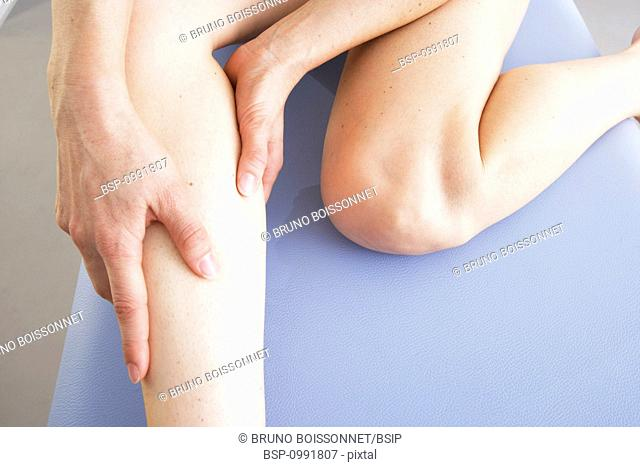 LEG PAIN IN A WOMAN Model